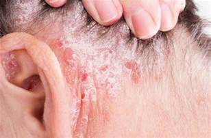 flaky skin pain picture 1