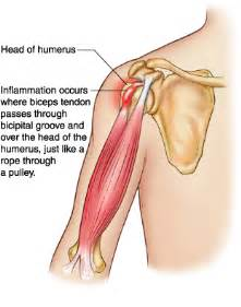 can large breast cause tendonitis in shoulder picture 10