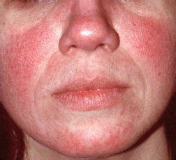where i can found acnevir acne & redness picture 8