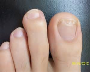 common causes of toenail fungus picture 17
