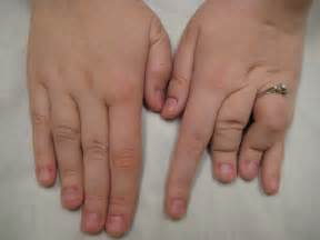 human growth hormone charcot marie tooth picture 9