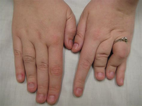 human growth hormone charcot marie tooth picture 6
