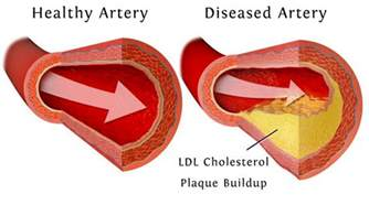 What is concidered high cholesterol picture 6