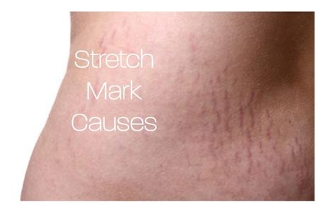 what causes stretch marks picture 13