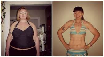 how to avoid extra skin from weight loss surgery picture 4