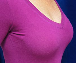 danville breast enhancement picture 7