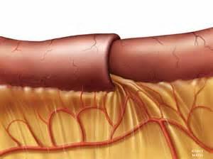 intestinal anurisims picture 15