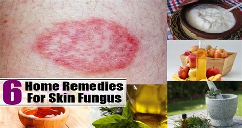 cures for skin fungus picture 13