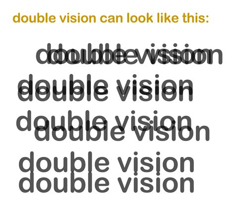double vision eye muscle surgery picture 17