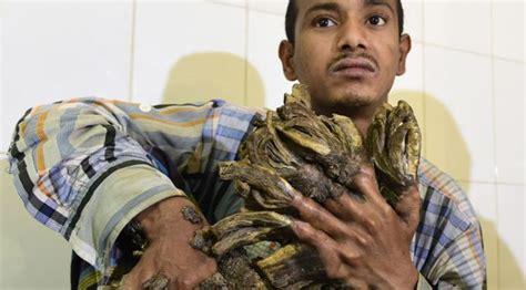 bangla likha ichthyosis treatment picture 2
