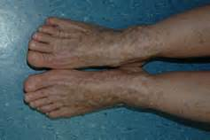 dermatology skin disorders picture 9