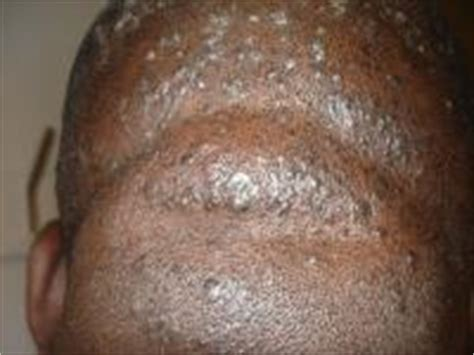 pictures genital warts in males penis head picture 2
