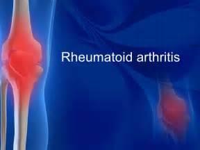 charlote arthritis pills picture 1