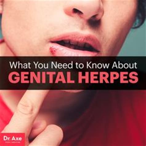 when to see dr for herpes outbreak picture 5