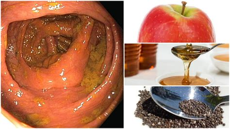 how to clean out the colon naturally picture 1