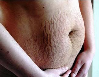 cost to remove stretch mark picture 3