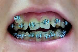 teeth braces picture 15