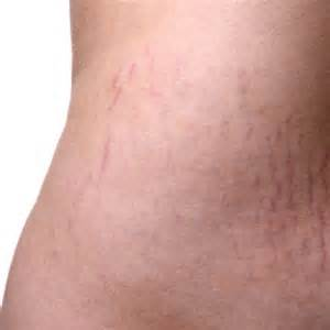 stretch marks picture 13
