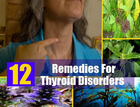 ayurvedic medicine to cure thyroid disease picture 5