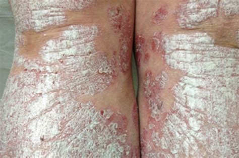 skin dieases picture 2
