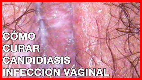 candida yeast infection com picture 5