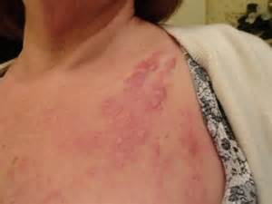 breast cancer skin mets to back pictures picture 5
