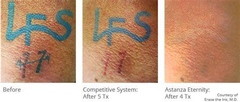 dr walker tattoo removal solution picture 5