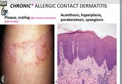 fungoides dermatidis picture 2