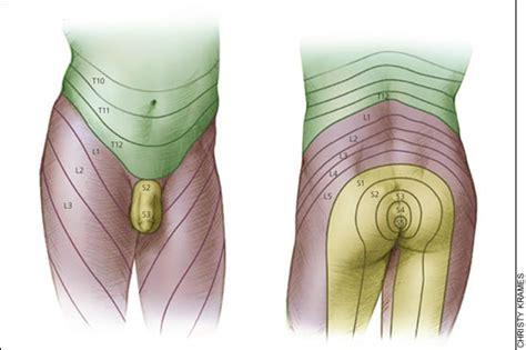 catheter insertions for sexual stimuli picture 2