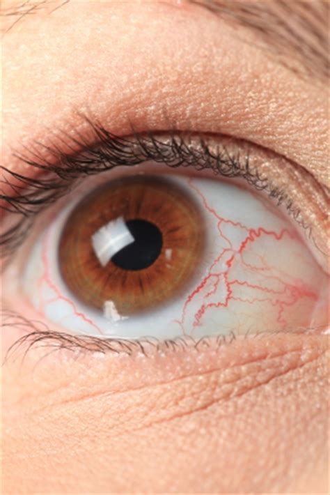 dry, red eyes, liver disease picture 17