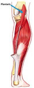 plantaris tendon picture 2
