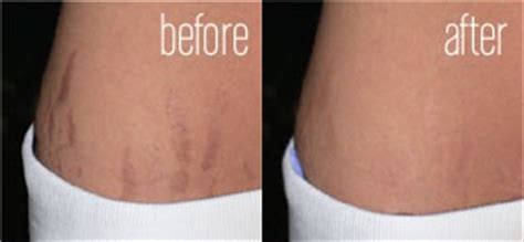 cvs best stretch marks removal picture 5
