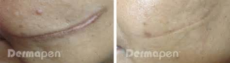 stretch mark removal derma pen picture 6
