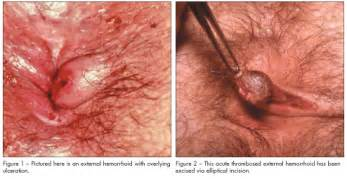 do hemorrhoids itch picture 3
