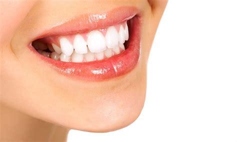 ashburn teeth whitening picture 7