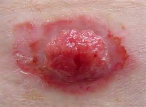 treating advanced cases of basal cell skin cancer picture 1