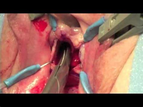 bladder sling surgery procedures picture 9