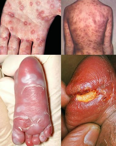 will herpes spread during picture 6