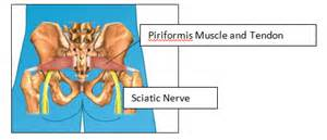 back muscle and tendon pain picture 14