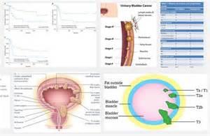 invasive bladder cancer picture 18