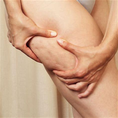 cellulite legs picture 11