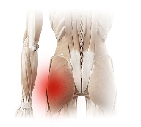 hip pain relief picture 7