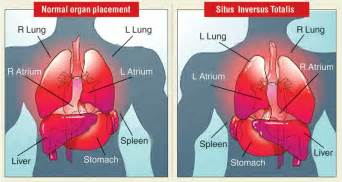 spleen and weight gain picture 6