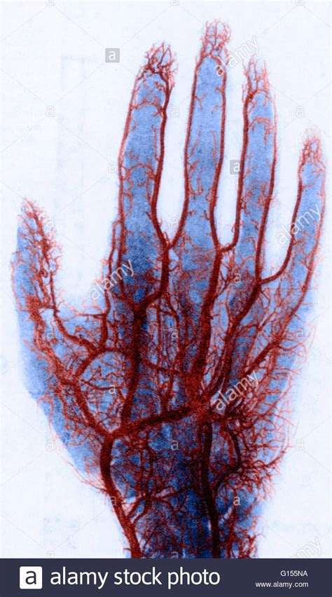 hitting the blood veins in hands what are picture 4