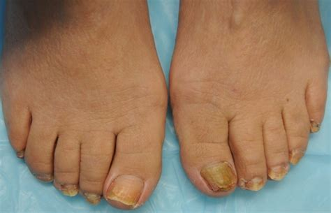 laser treatment for foot fungus mn picture 6
