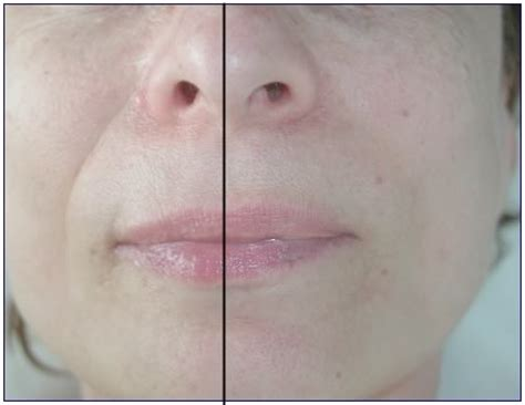 an skin tightening picture 17