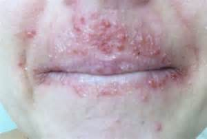 acne like rash that itches picture 17