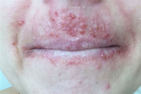 acne or a rash picture 7