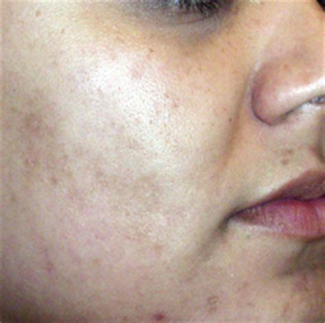 consumers acne scars thermage picture 6