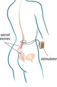 medtronic bladder stimulator picture 5